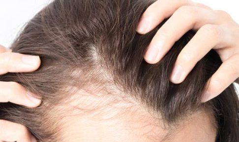 女性の薄毛を引き起こす原因と対策【7選】_くま子の自毛植毛ブログ