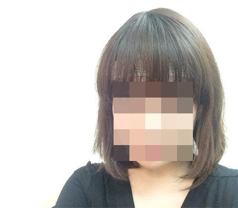 くま子の植毛ブログ_アルタス(ARTAS)で自毛植毛してきたよ【手術当日:後編】