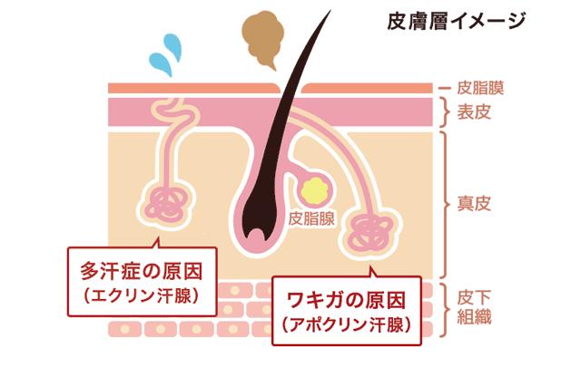 ワキガと多汗症の違いとは?ニオイのチェック方法【決定版】_多汗症の原因(エクリン汗腺)とワキガの原因(アポクリン汗腺)