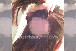 薄毛に悩むアラサー女が自毛植毛した話【手術翌日の様子】_アルタス(ARTAS)によるドナー採取