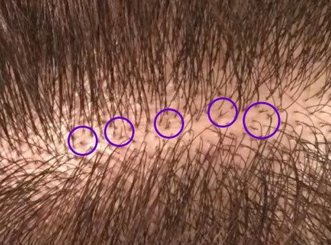 薄毛に悩むアラサー女が自毛植毛した話(6)【手術2週間後】_女性の薄毛改善