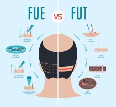 薄毛に悩むアラサー女が自毛植毛した話(6)【手術2週間後】_FUEとFUTの違い