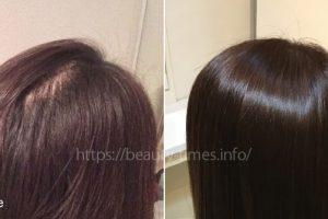 つむじ割れ・つむじの薄毛を治す方法【6選】
