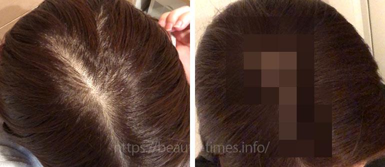 女性も使える薄毛治療薬「ミノキシジル」を1年飲んだ結果【体験レビュー】