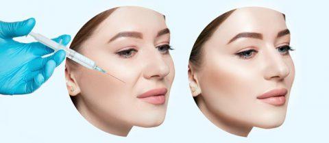 美容整形でほうれい線を消す方法【初心者にはヒアルロン酸注射がおすすめ】