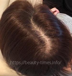 くま子の美容医療ブログ_女性の薄毛の悩み